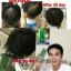Neo Hair Lotion นีโอ แฮร์ โลชั่น 120 มิลลิลิตร 1 ขวด thumbnail 11