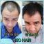 Neo Hair Lotion นีโอ แฮร์ โลชั่น 120 มิลลิลิตร 1 ขวด thumbnail 12