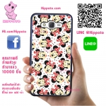 เคส ซัมซุง A5 2015 มินนี่ หลายตัว เคสน่ารักๆ เคสโทรศัพท์ เคสมือถือ #1024