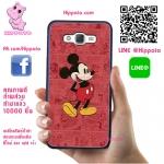 เคส ซัมซุง A5 2015 มิกกี้เมาส์ พื้นแดง เคสน่ารักๆ เคสโทรศัพท์ เคสมือถือ #1029
