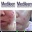 Medileen Anti Acne เมดีลีน แอนตี้ แอคเน่ รักษาสิวอักเสบ สิวฮอร์โมน ได้ถึงต้นตอของสิว thumbnail 8