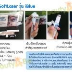 วิธีใช้ SoftLaser รุ่น แสงสีฟ้า (iBlue)