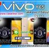 เคส Vivo Y65 แมนยู กรอบแข็ง ภาพมันวาว สีสดใส กันกระแทก